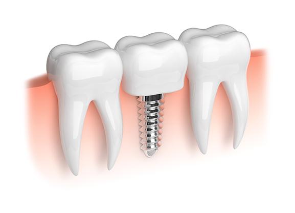 sideimage-dental