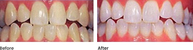 cs-teeth-whitening
