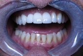 Dental Implant Crowns_CaseStudy_After