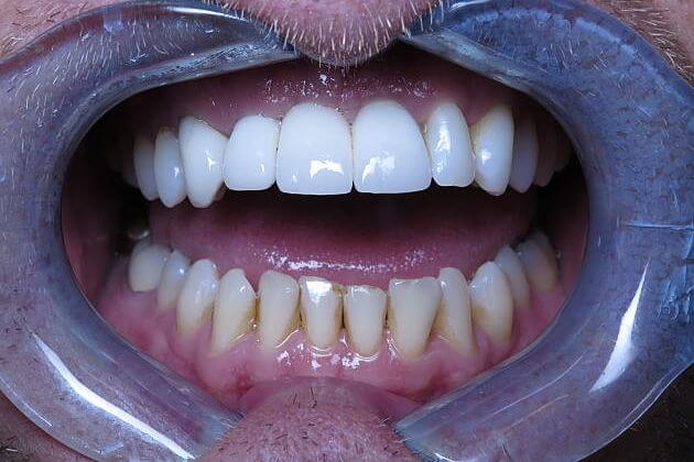 Dental Implant Crowns_CaseStudy_After