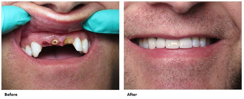 dental-implants-case-study-before-and-after