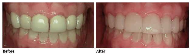 dental-crown-case-study-before-and-after-park-dental