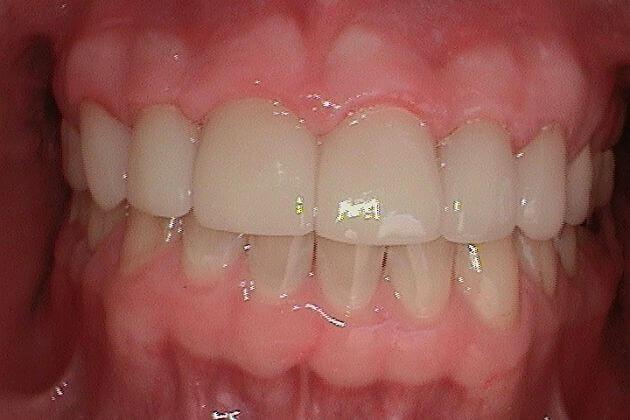 dental-crown-after-park-dental