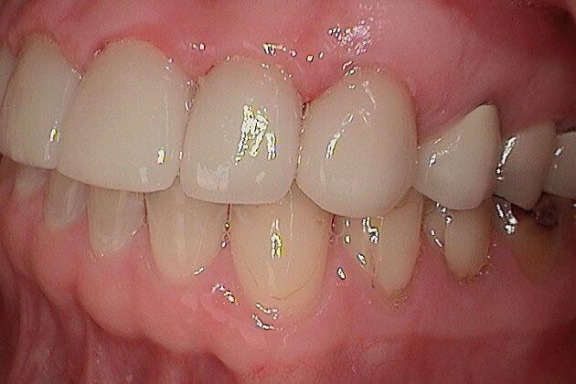 dental-crown-before-and-after-park-dental