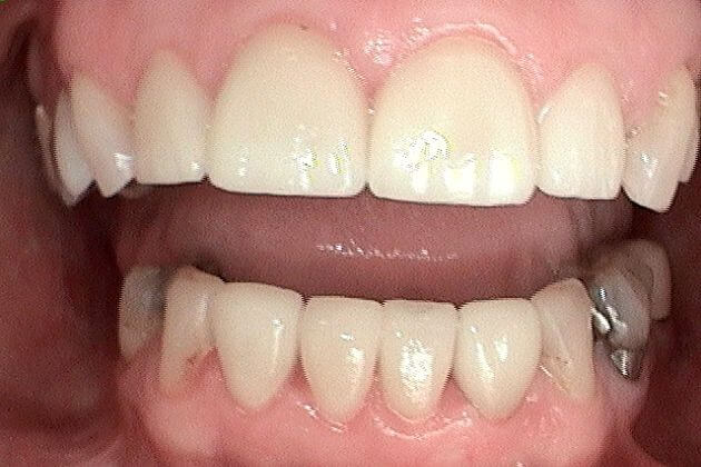 dental-crown-before-and-after-park-dental-case-study