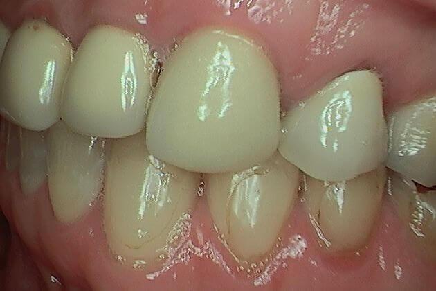 Dental-Crown-Before